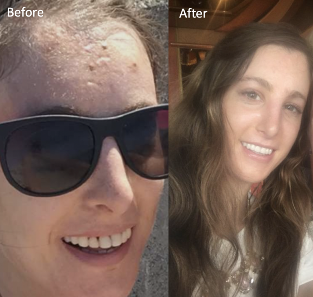 Before After acne scar healing picture