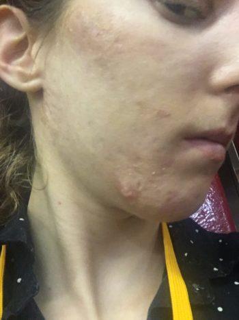acne scar chin