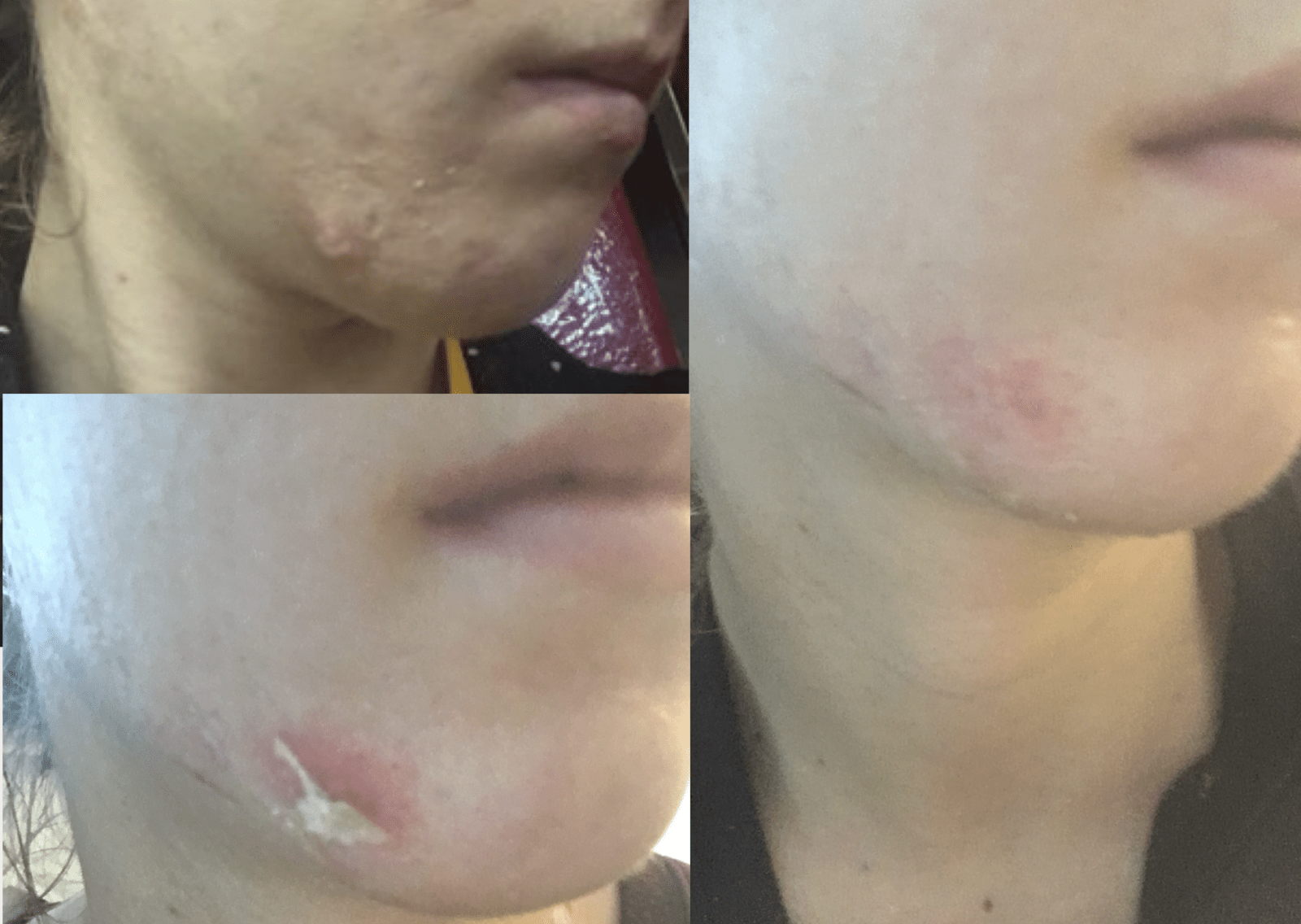 acne scar peel to heal
