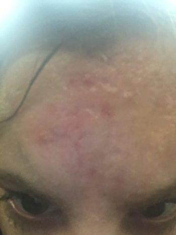 depressed-acne-scars