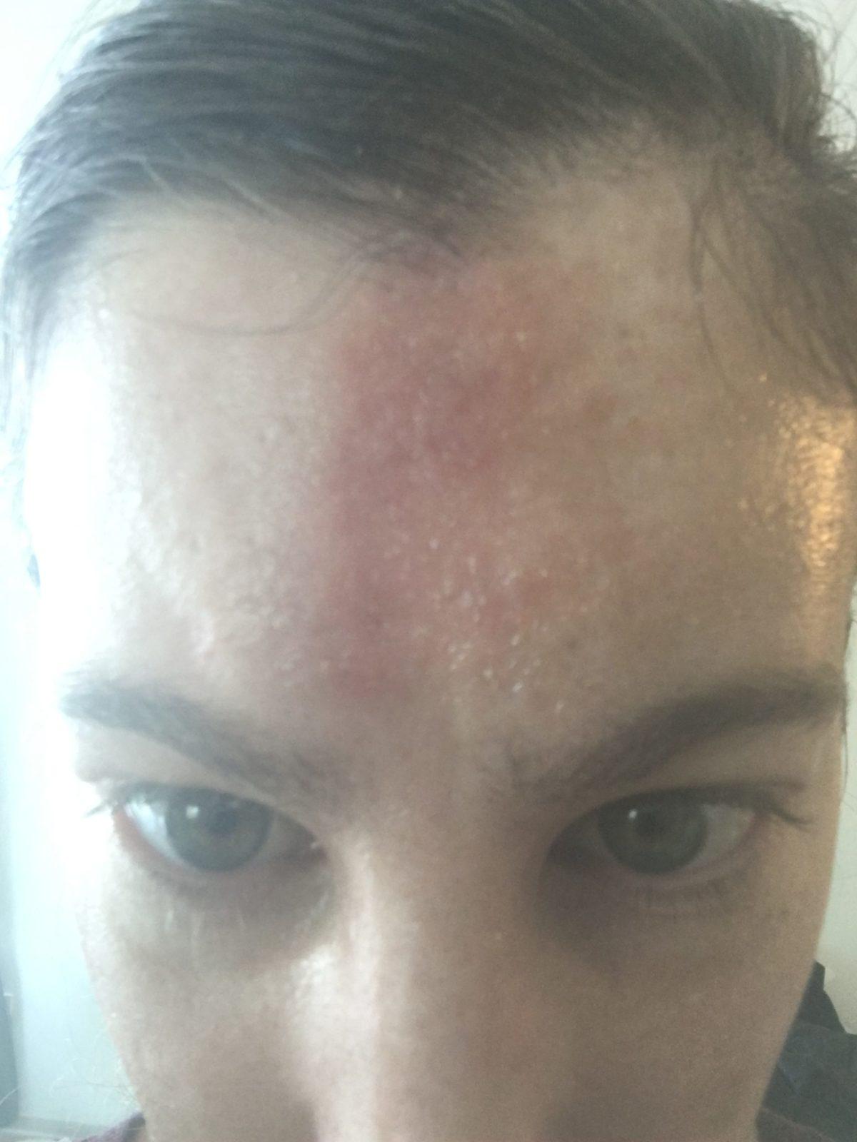 healing forehead