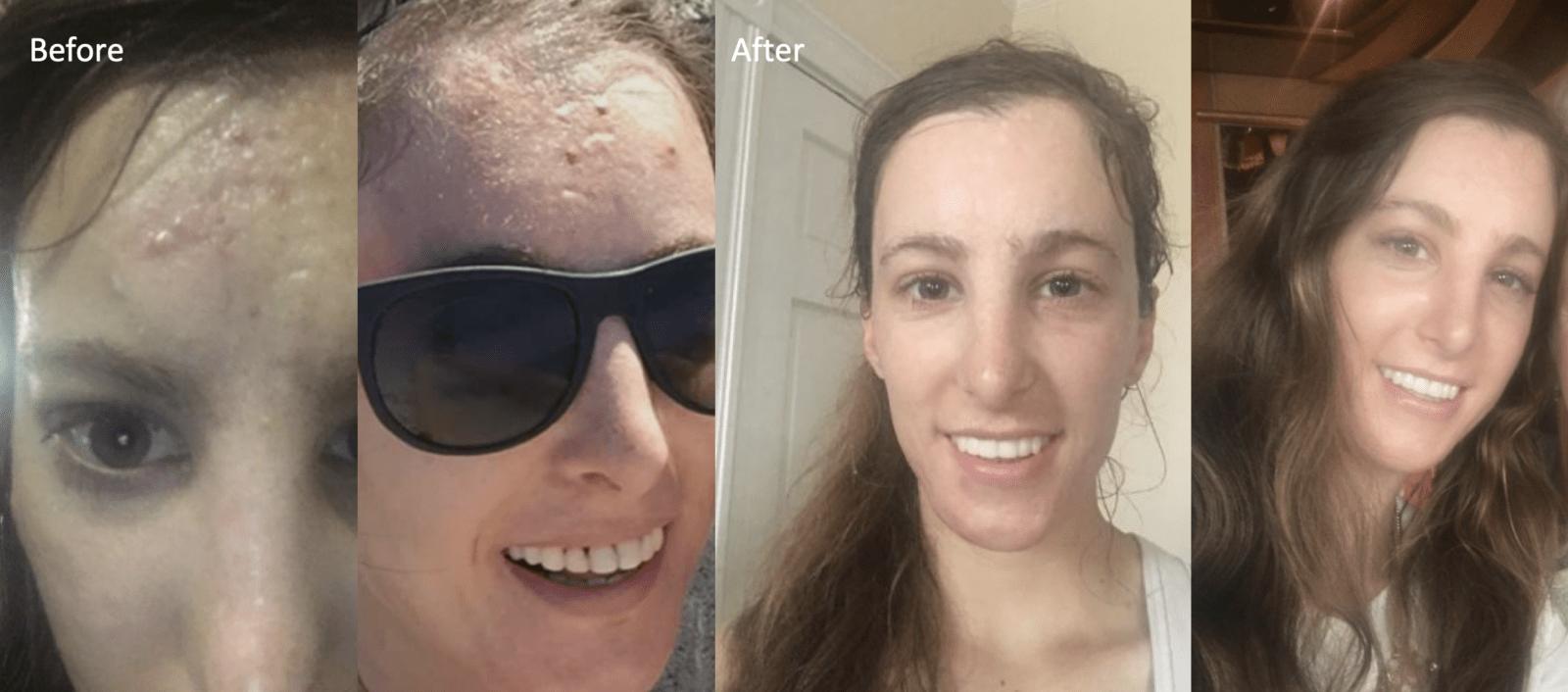 icepick acne scar healing