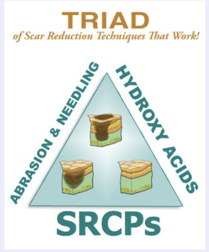 microneedling acne scar healing