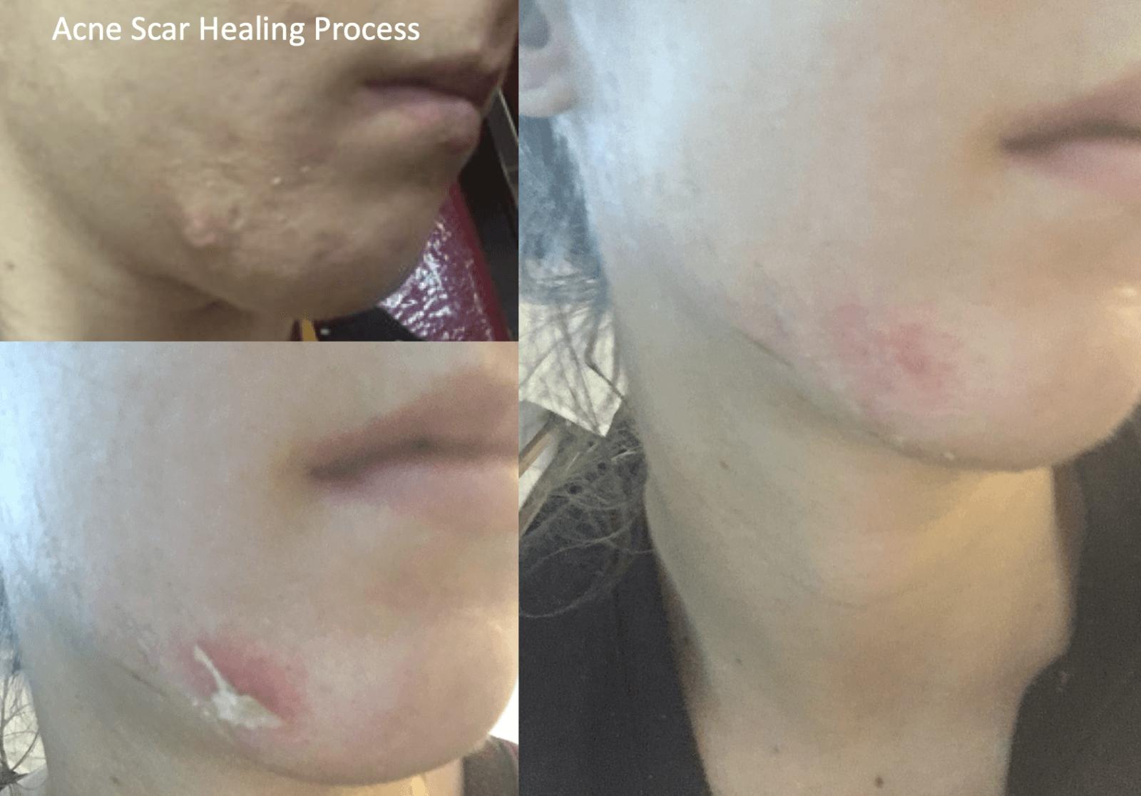 Acne Scar Healing Process