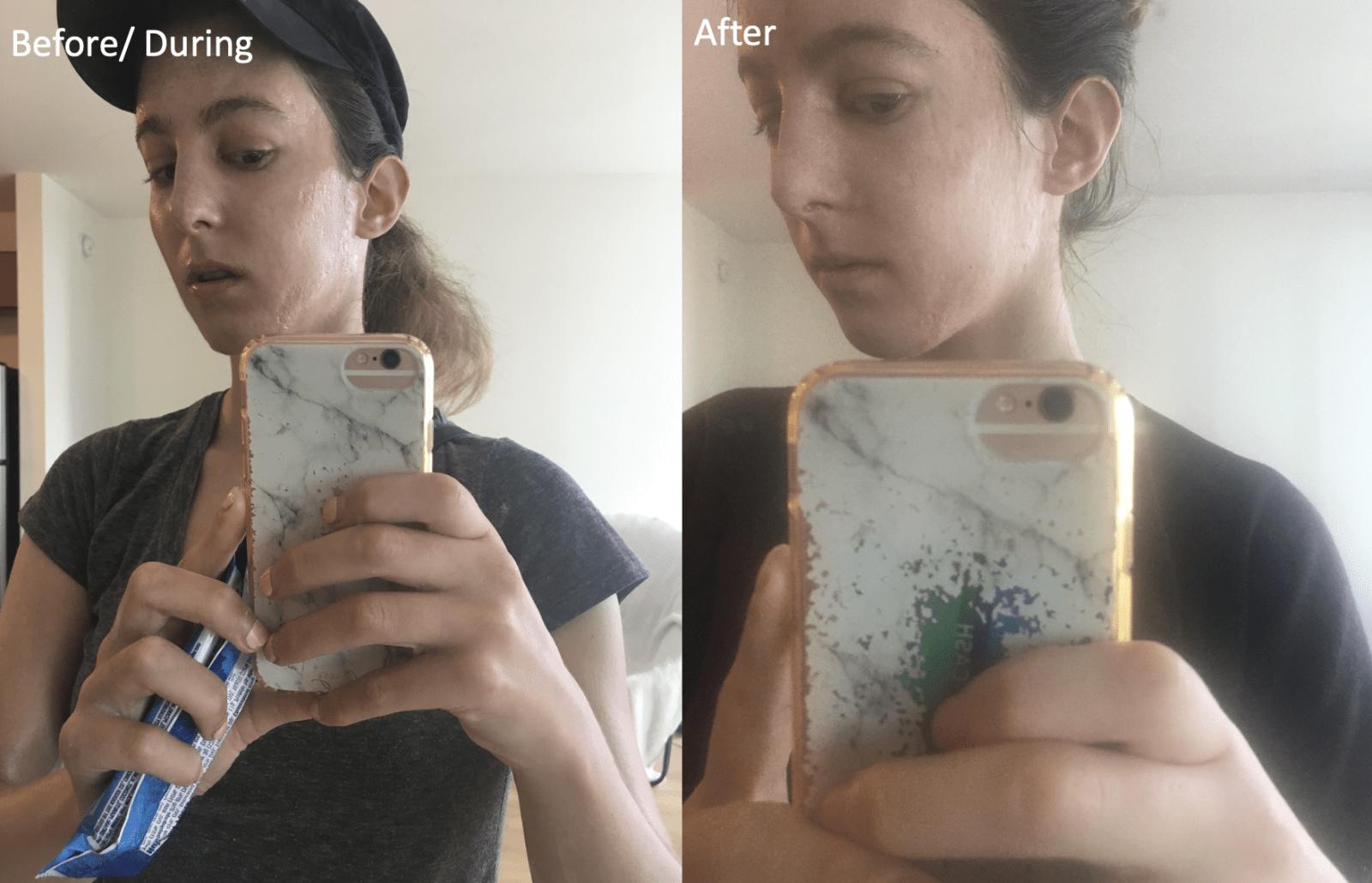 rolling acne scar side healing