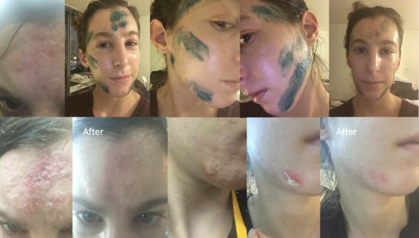 copper peptide acne scar healing process